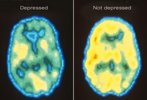mózg depresja