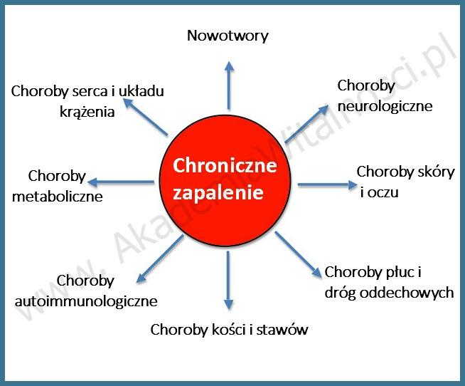 chroniczne-zapalenie1